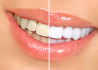 Teeth Whitening in Winston Salem, NC